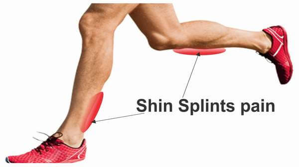 你也有這些困擾嗎?五種常見跑步傷害的整理與復原建議